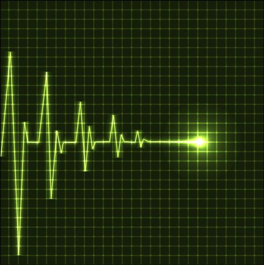 Photo of Обладатель искусственного сердца скончался Обладатель искусственного сердца скончался Обладатель искусственного сердца скончался 133605aaS640 WF1
